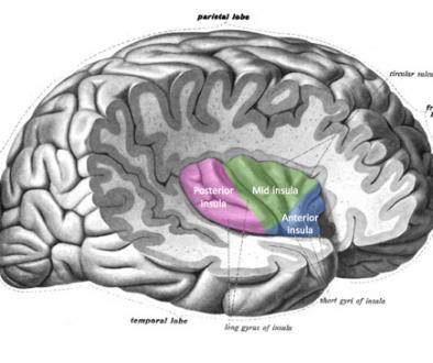 Misofonie in de hersenen
