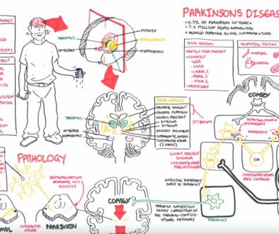 De ziekte van Parkinson -simpel uitgelegd